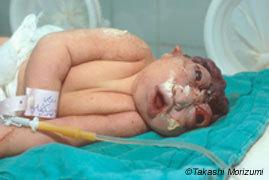 Newbornbaby-copie-1.jpg