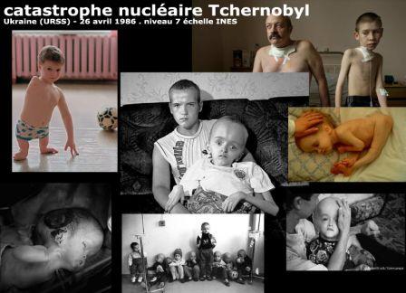 27b_enfants-Tchernobyl.jpg